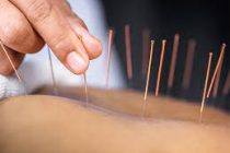 Basic Process of Acupuncture